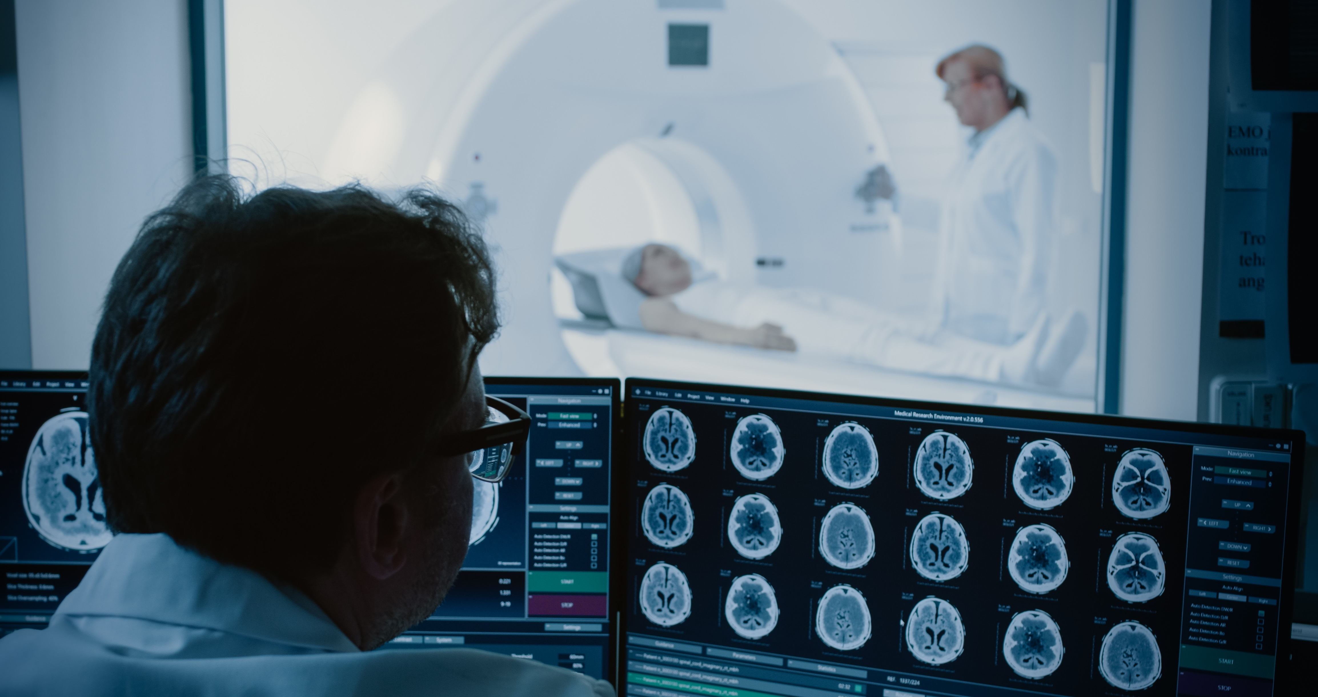 Study predicts brain tumour response to therapy, could improve patient outcomes